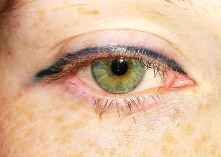Permanent Eye Makeup Gone Wrong